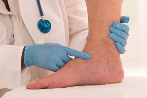טיפולים חדשניים להעלמת ורידים בולטים ברגליים