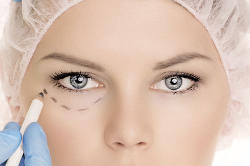 ניתוחי עפעפיים - להראות צעירה יותר