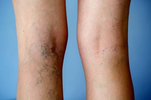 טיפולים חדשניים להעלמת ורידים בולטים ברגליים - הסוף לסבל!
